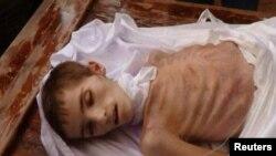 (ілюстраційне фото: голод у Сирії)