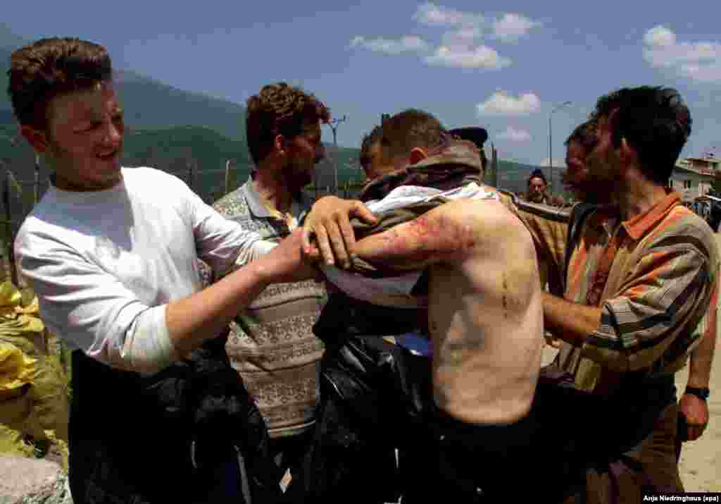 A Kosovo Albanian refugee shows his wounds after crossing the border from Yugoslavia into Albania on May 29, 1999.