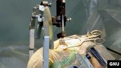 Пациенту вводят в мозг электроды.