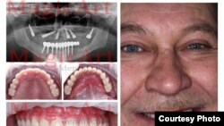 A happy dental-implant customer in Belarus.