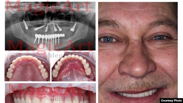 İmplant dişlər