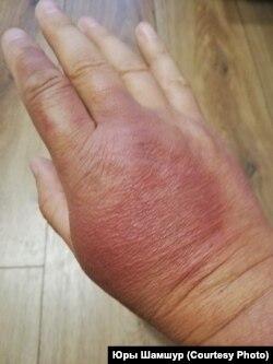 Рука журналіста, пашкоджаная сілавікамі