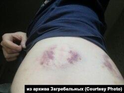 Травмы Артема Загребельного после нападения, ноябрь 2019 г.
