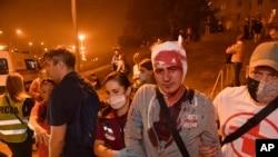 گفته میشود در جریان سرکوب اعتراضات به نتایج انتخابات بلاروس نیروهای پلیس دهها نفر را مجروح و چند هزار نفر را بازداشت کردند.