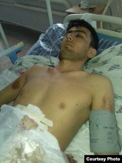 По словам Гульхон Нуруллаевой, после избиения сотрудниками милиции ее сын Закир целых шесть дней находился в коме.