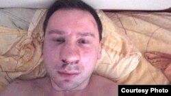 Побитий опозиційний активіст Єгор Алєксєєв