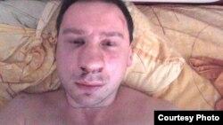 Избитый оппозиционный активист Егор Алексеев