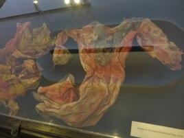 Выставка Rana Plaza Fashion. Платье, найденное фотографом Сореном Зеушем на руинах Рана-Плаза