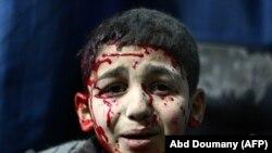 یک طفل سوری