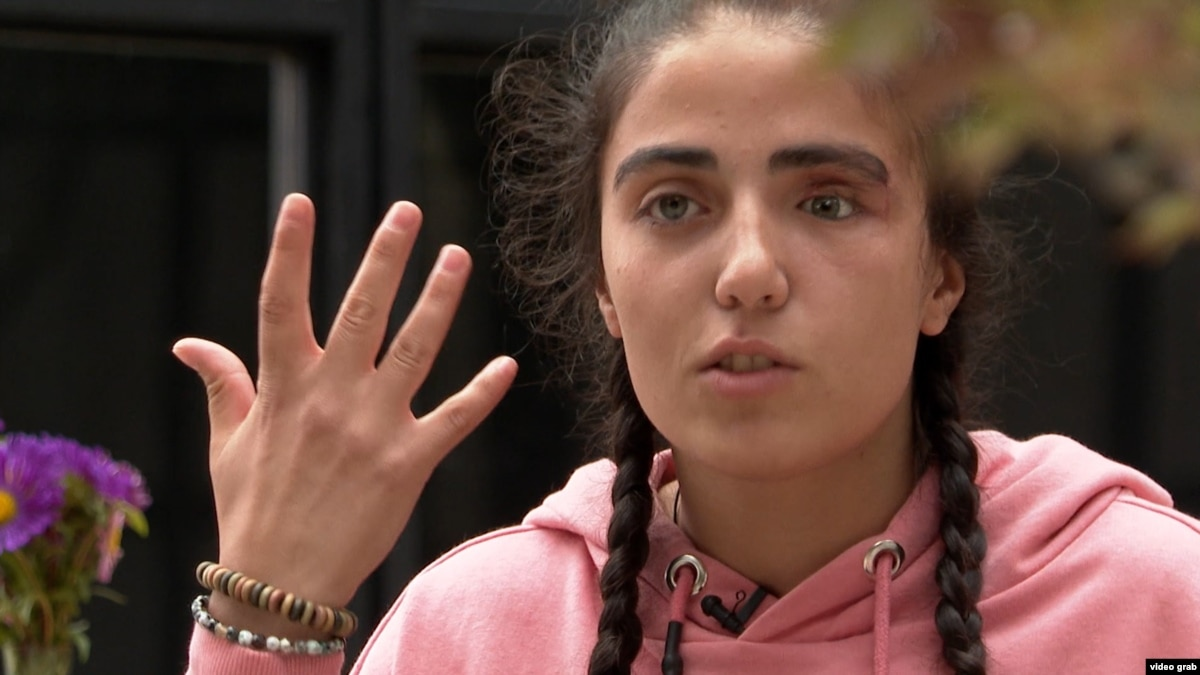 'My Eye Was Gone': Georgian Teen Fights For Justice Months After Protests