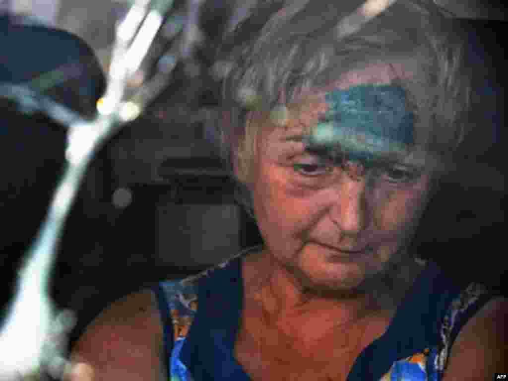 Раненая при обстреле грузинская женщина покидает Гори. 15 августа 2008 года.