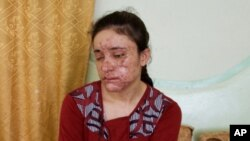 Девушка-езидка, спасенная из рабства у боевиков