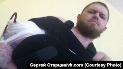 Сергей Старцев - о том, как ему сломали руку челябинские полицейские