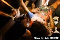 Раненый участник протеста. Минск, 10 августа