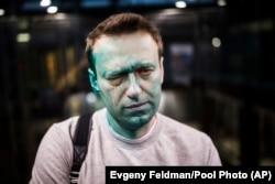 """Rusiyalı müxalifət lideri Aleksei Navalny Moskvada naməlum şəxslərin ona """"zelyonka"""" ilə hücum etməsindən sonra. 27 aprel, 2017. Foto: Evgeny Feldman/Pool Photo (AP vasitəsilə)."""