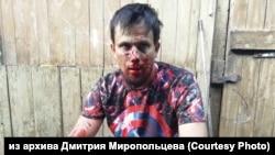 Юрист Дмитрий Миропольцев после нападения, 7 августа 2019 года
