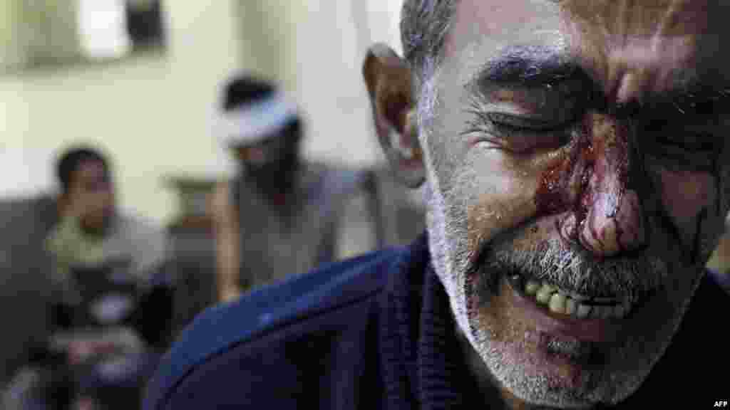 OCTOBER 31, 2012 -- Kamal, the father of an 8-year-old girl who was fatally wounded by fire from a Syrian military jet, cries while being treated at a local hospital in a rebel-controlled area of Aleppo. (AFP/Javier Manzano)