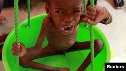 Efiopiyada aclıqdan əziyyət çəkən qaçqaın uşaqları
