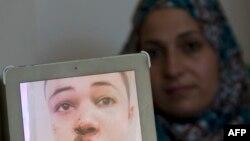 مادر نوجوان آمریکایی-فلسطینی، عکسی از او را پس از ضرب و شتم به خبرنگاران نشان میدهد