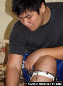 Жанболат с раненой ногой. Жанаозен, 1 мая 2012 года.