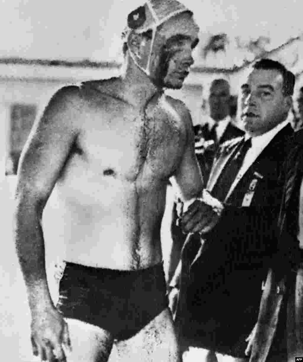 Hungarian water-polo player Ervin Zador after the infamous semifinal against the U.S.S.R. at the Melbourne Olympics in 1956 (just after the Soviet invasion of Hungary). The Hungarians won the bad-tempered match and went on to clinch the gold medal.