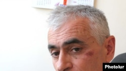 RFE/RL's Hrach Melkumian, who was beaten by an unknown assailant in Yerevan this week.