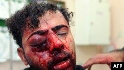 Повреден маж во судрите меѓу полицијата и антивладините демонстранти во Бахреин