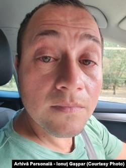 Din cauza ambroziei, lui Ionuț Gașpar i se înroșesc ochii.