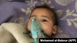 Dete u bolnici nakon hemijskog napada, Sirija, 2017.