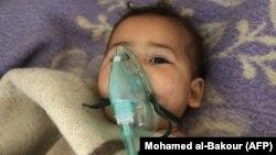 Сирійська дитина, постраждала від імовірно хімічної атаки на Хан Шейхун в підконтрольні повстанцям провінції Ідліб, квітень 2017 року