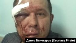 Избитый Андрей Радаев