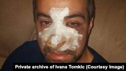 Igor Tomkić sa posljedicama premlaćivanja