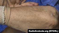 Ганні Стрижковій ще у дитинстві вивели концтабірний номер, на його місці лишився лише шрам