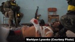 Раненный украинский военнослужащий