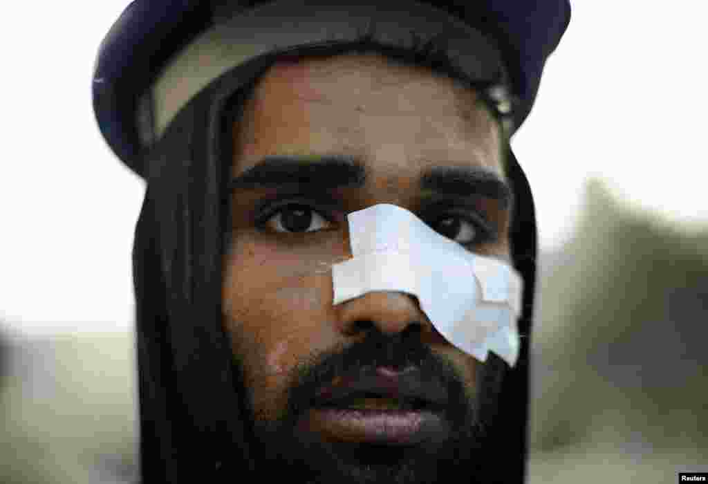 An injured protester takes part in mass demonstrations in Tahrir Square on February 9, 2011.