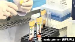 ՁԻԱՀ-ի կանխարգելման կենտրոնի լաբորատորիայում, արխիվ