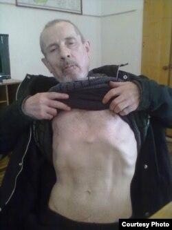 Николай Валетов показывает следы от пыток.