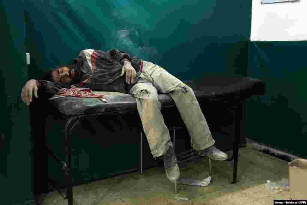 A Syrian man awaits treatment at a makeshift hospital in Zamalka, near Syria's capital, Damascus, following reported shelling. (AFP/Ammar Suleiman)