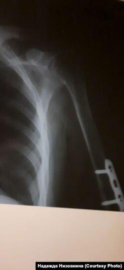 Рентген сломанной руки Дмитрия Баирова, Улан-Удэ, 28 января