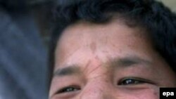Если человек вырастает в нестерильной среде, он оказывается менее подвержен аллергии