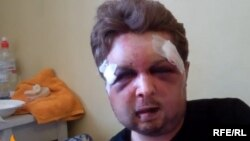 Пострадавший при нападении Виктор Святский