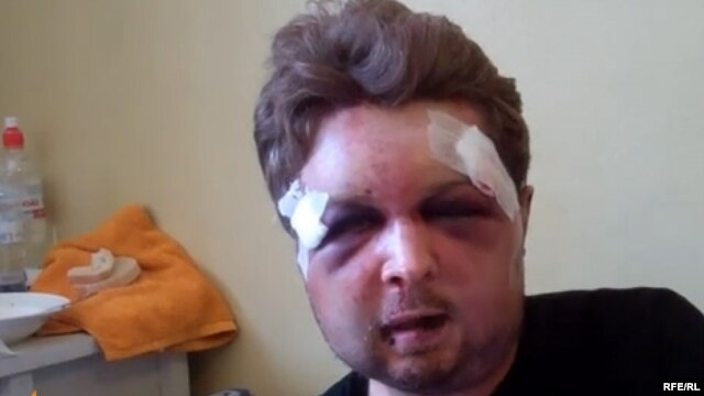 Viktor Svyatskiy was brutally beaten late on July 24, leaving him with a broken jaw and missing teeth.