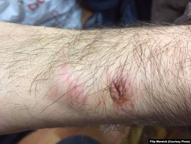 Траўма атрыманая падчас затрыманьня сілавікамі