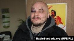 Журналіст Радіо Свобода Дмитро Баркар після побиття бійцями спецзагону міліції «Беркут» 20 січня 2014 року