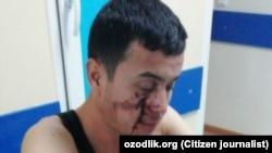 Избитый в Казахстане узбекский мигрант.