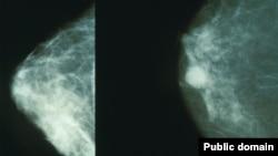 تصویر ماموگرافی، در سمت راست پستان مبتلا به سرطان و در سمت چپ پستان سالم