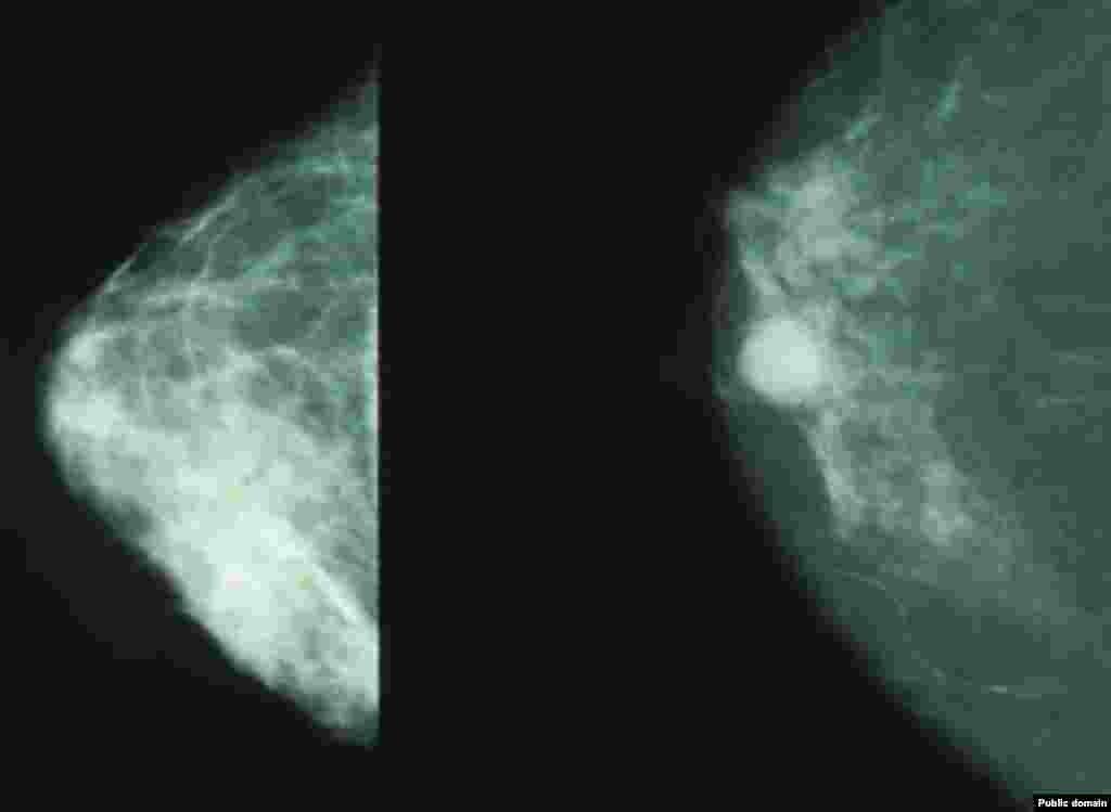 МАКЕДОНИЈА - Од рак на дојка годишно во Македонија умираат по 279 жени, односно 27 на 100.000, а најголем број на смртните случаи се на возраст од 55 до 59 години, соопштија на прес-конференција од Институтот за јавно здравје по повод Октомври - месец за свесноста за рак на дојка.