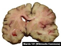 Срез мозга человека, умершего от инсульта