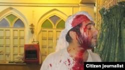 یکی از مجروحان حمله به مسجد قبای شیراز