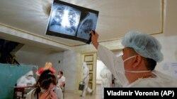 Медработник изучает рентген-снимок.